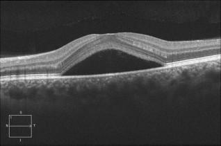 Imagen 2 Desprendimiento de retina