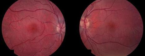 Imagen 5 Patrón radial en ambas maculas
