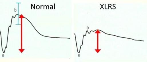 Imagen 7 ERG normal y alterado en XLRS